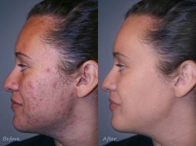 Argan Oil Acne Results