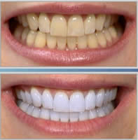 Idol White Teeth Whitening Before and After
