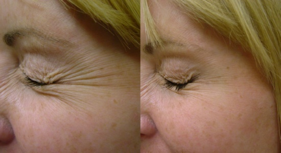 Ellen's Crow's Feet vanishing with Essence of Argan and Idrotherapy